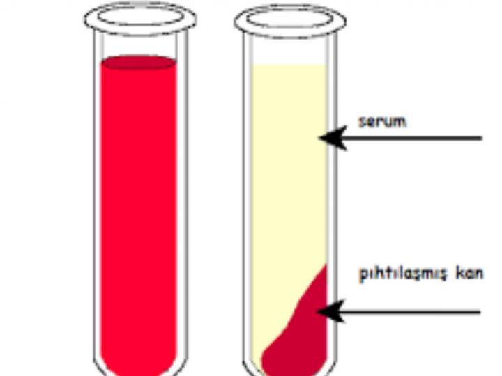 Kan Plazması